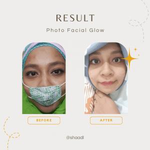 photo facial glow